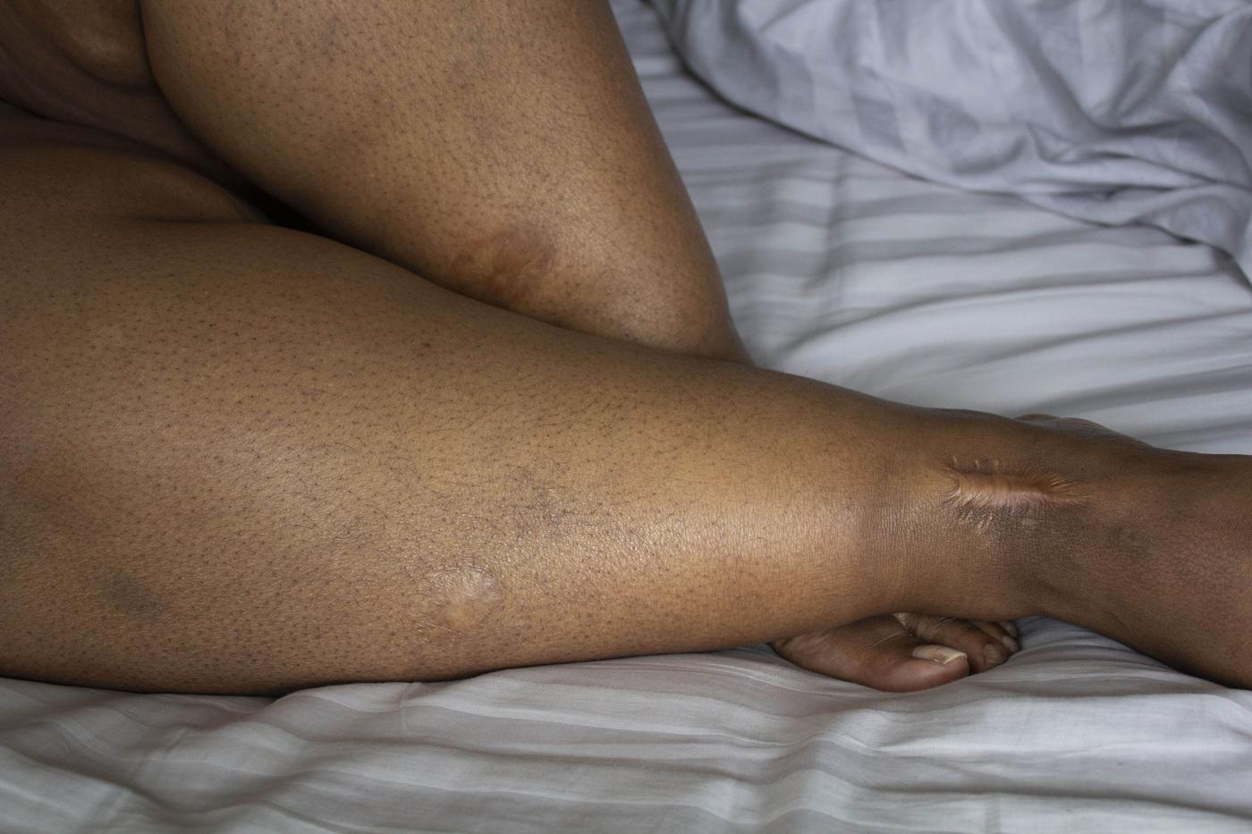 Color photograph of the lower part of a woman's legs. She is an African American woman with thick calves and three large scars, two circular ones on her calves and one long deep scar on her ankle.